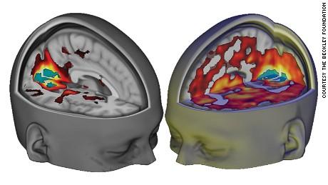 160412121328-brain-on-lsd-large-169