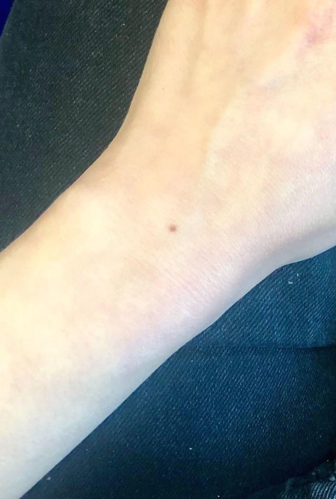 sable wrist freckle